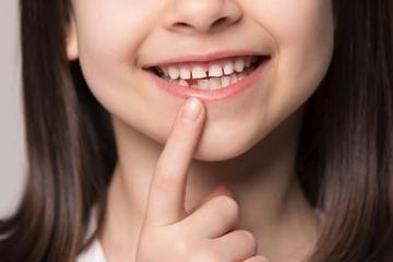 Поставят безплатно силанти на деца от 5 до 8 години като превенция на кариеси